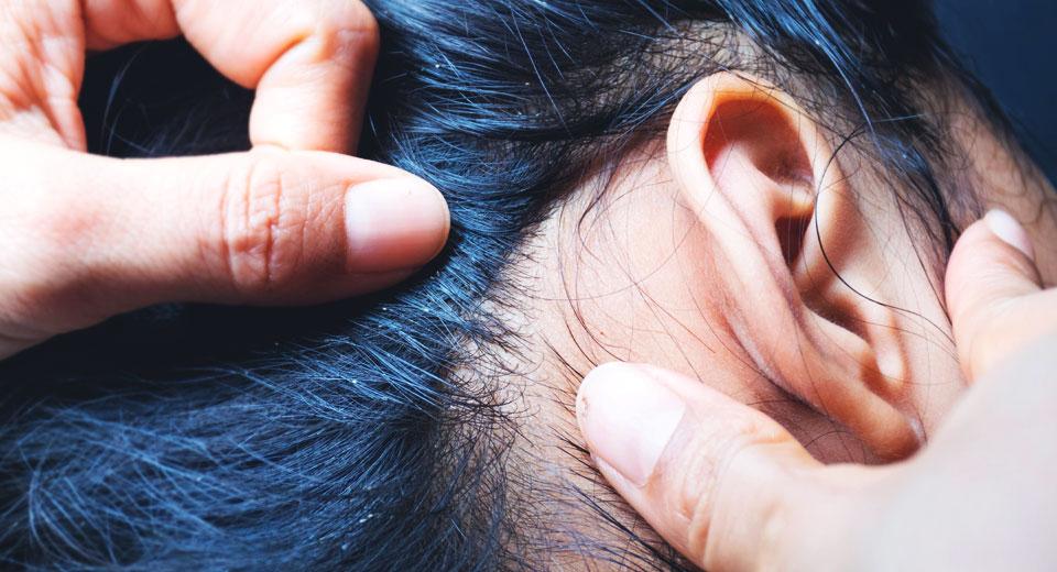 Kopfläuse bei Kindern erkennen